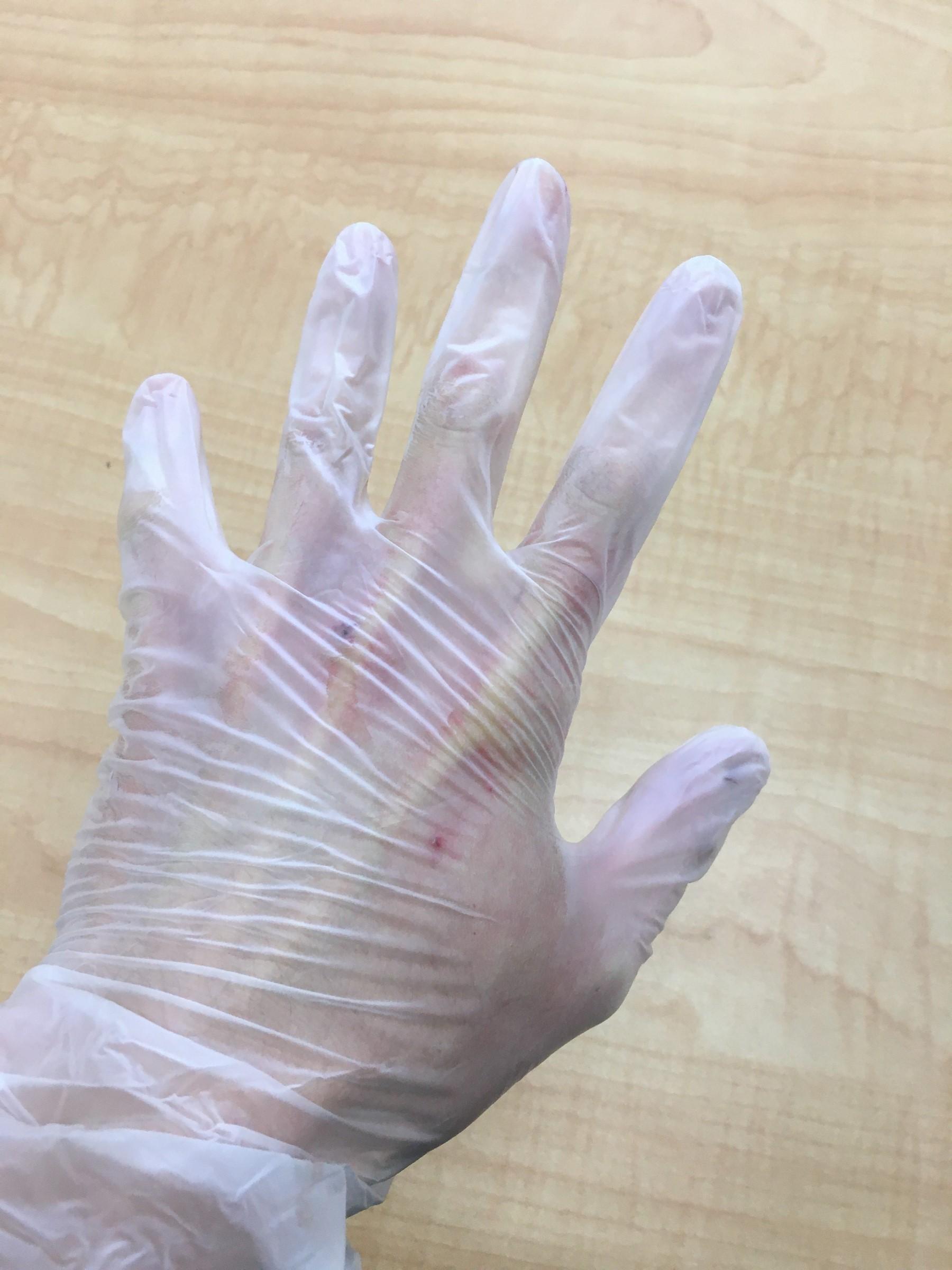 手袋 コロナ ゴム